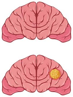 Cervello umano con cancro