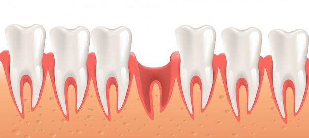 Chirurgia dentale dell'illustrazione realistica nel vettore 3d