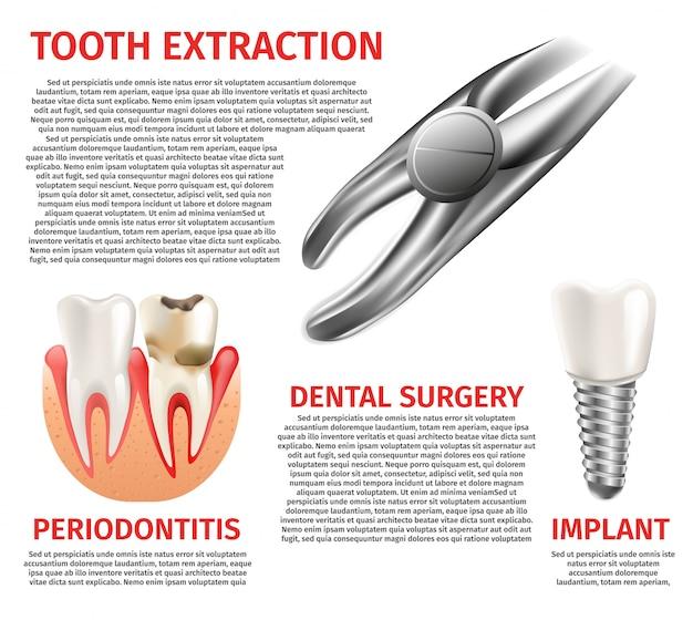 Chirurgia dentale infografica illustrazione realistica