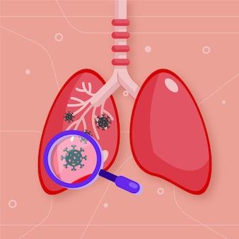 Concetto di polmonite da coronavirus