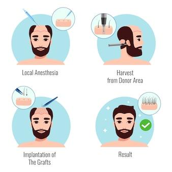 Concetto di progetto con l'uomo barbuto sulle fasi della procedura di trapianto di capelli isolato