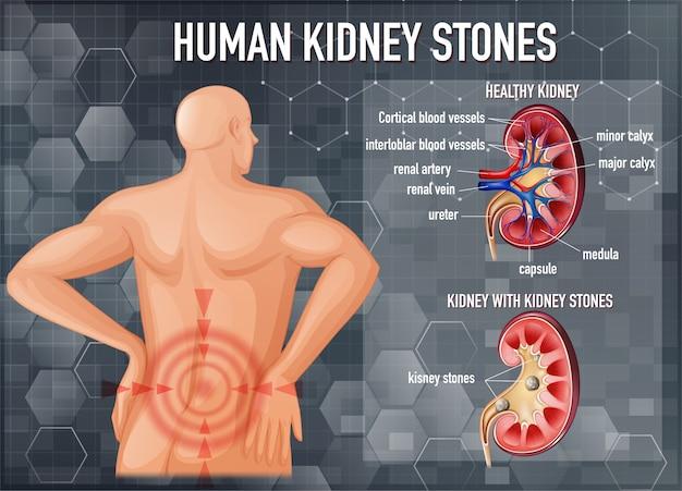 Confronto di reni sani e reni con calcoli