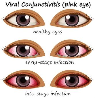 Congiuntivite virale negli occhi umani