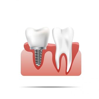 Denti sani e impianto dentale. illustrazione realistica dell'odontoiatria medica del dente
