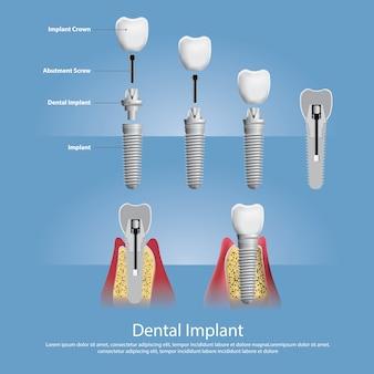 Denti umani e illustrazione dell'impianto dentale