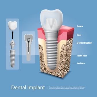 Denti umani ed illustrazione di vettore dell'impianto dentale