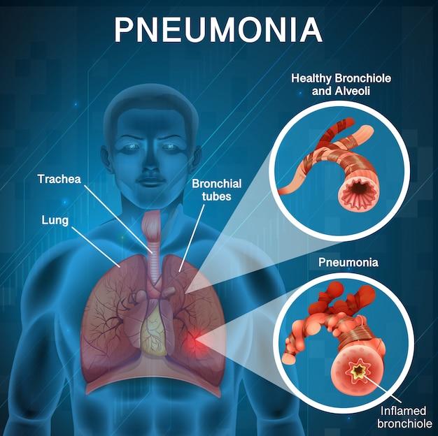 Design del poster per la polmonite con polmoni umani e cattivi