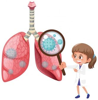 Diagramma che mostra i polmoni umani con cellule di coronavirus