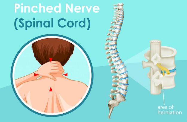 Diagramma che mostra il midollo spinale