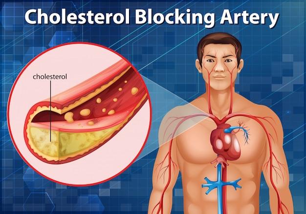 Diagramma che mostra l'arteria che blocca il colesterolo nel corpo umano
