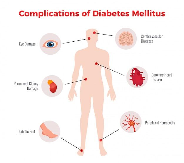 Diagramma educativo medico delle complicanze del diabete con rappresentazione e descrizione dei danni degli organi umani colpiti piatta