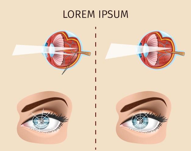 Diagramma vettoriale di astigmatismo