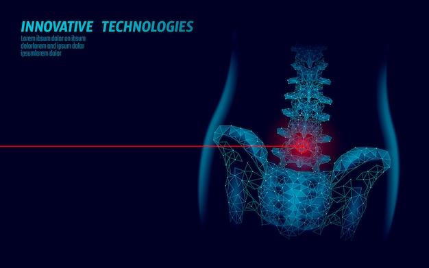 Dolore alla radicolite lombare dell'anca della colonna vertebrale umana basso poli. illustrazione di vettore di area dolorosa rossa blu tecnologia poligonale geometrica triangolo punto punto linea tecnologia del futuro