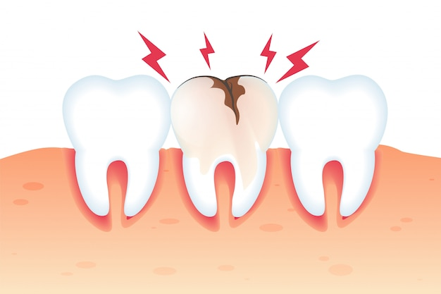 Dolore nell'illustrazione dentata del dente rotto 3d.