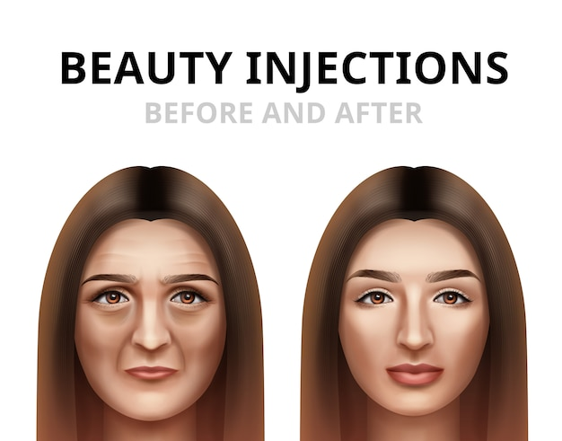 Donna che ha iniezione facciale di bellezza