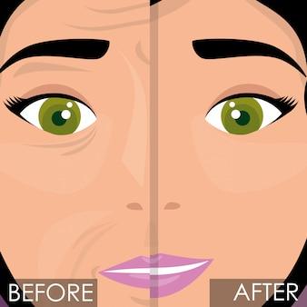 Donna prima e dopo il trattamento della pelle