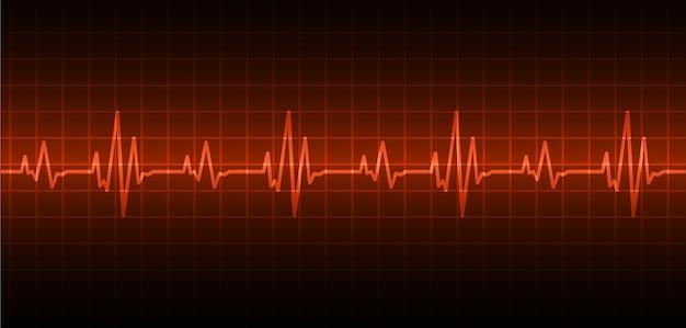 Ekg onda del cuore