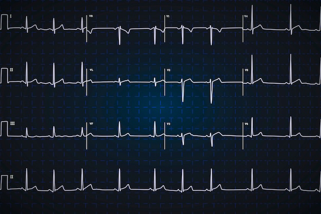 Elettrocardiogramma umano tipico, grafico bianco su sfondo blu scuro
