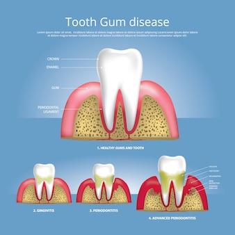Fasi dei denti umani dell'illustrazione della malattia di gomma