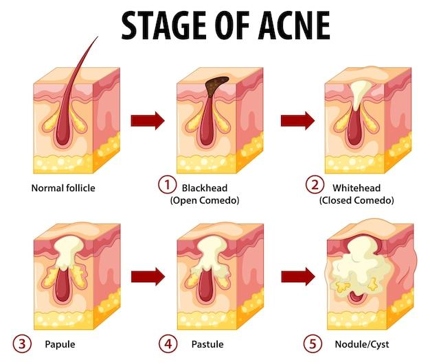 Fasi dell'anatomia della pelle dell'acne