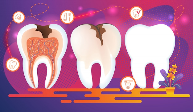 Fila di denti con problemi dentali