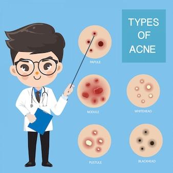 I dottori consigliano l'acne.