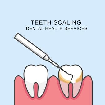 Icona di ridimensionamento dei denti - dente di ridimensionamento con sonda parodontale
