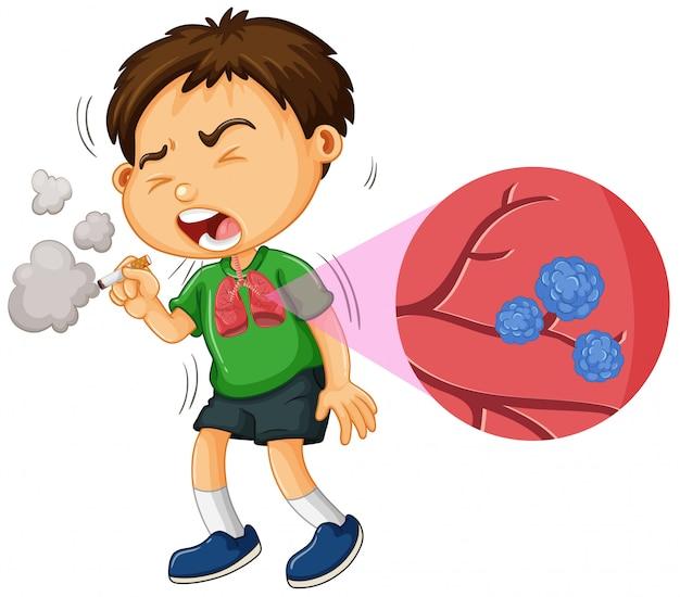 Il cancro al polmone e il fumo del ragazzino