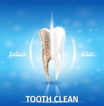 Il dente realistico dell'illustrazione pulisce nel vettore 3d