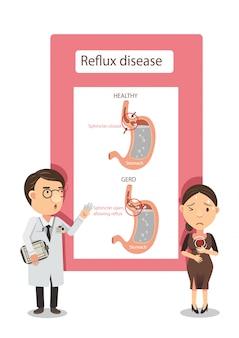 Illustrazione della malattia da reflusso acido