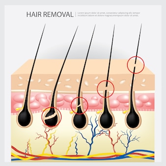 Illustrazione di esempio di depilazione