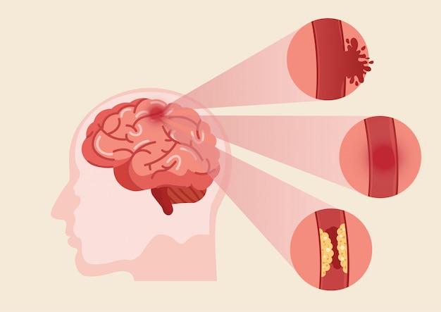 Illustrazione di ictus del cervello umano.