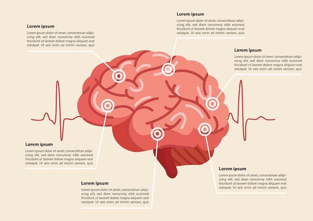 Illustrazione di ictus del cervello umano