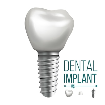 Illustrazione di impianto dentale
