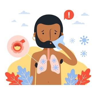 Illustrazione di polmonite da coronavirus