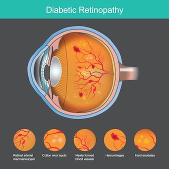 Illustrazione di retinopatia diabetica