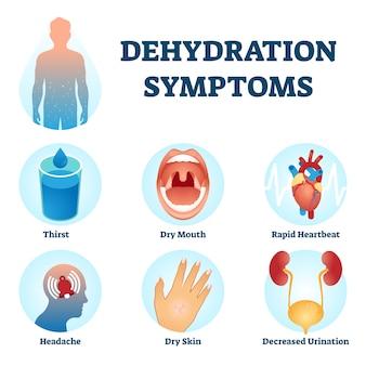 Illustrazione di sintomi di disidratazione. schema di diagnosi del deficit idrico.