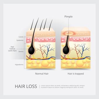 Illustrazione di vettore della struttura di perdita di capelli