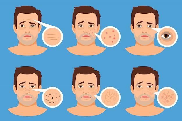 Illustrazione di vettore di problemi della pelle dell'uomo. viso maschile con brufoli e macchie scure, rughe e acne