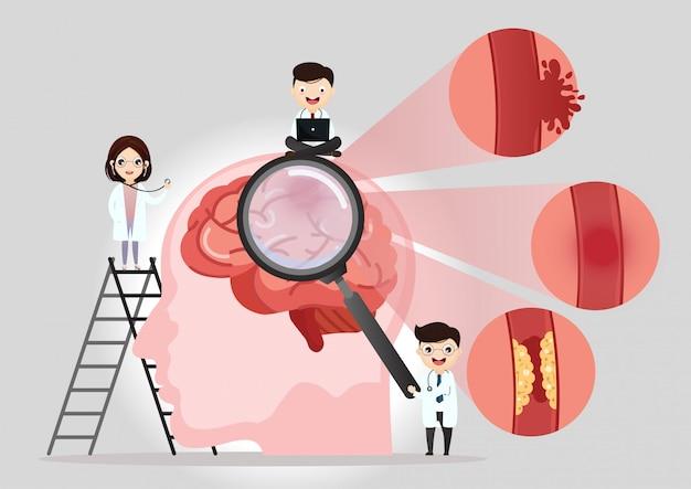 Illustrazione medica scientifica del colpo di cervello umano