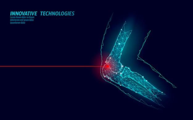 Illustrazione umana di vettore del modello 3d dell'articolazione del gomito. la tecnologia del futuro a basso poli design cura il trattamento del dolore.