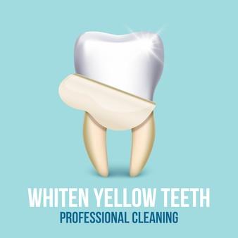 Impiallacciatura del dente che imbianca concetto di odontotecnico. stomatologia sanitaria e pulizia professano