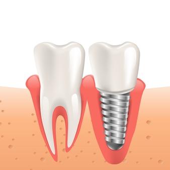 Impianto del dente realistico dell'illustrazione in grafico 3d