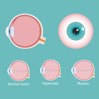 Infografica di difetti oculari