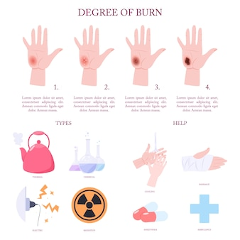 Infografica e fasi di trattamento delle lesioni da ustione della pelle.