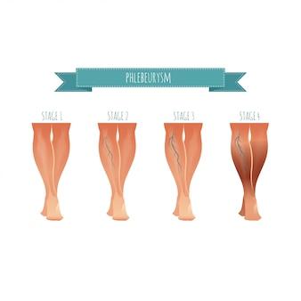 Infografica flebologia, trattamento delle vene varicose. illustrazione dello stadio delle malattie delle vene