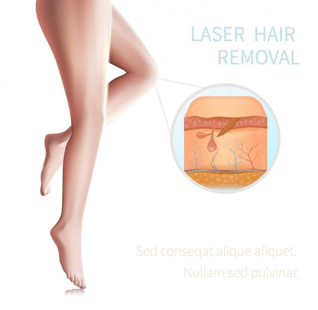 Infografica medica procedura di depilazione laser.