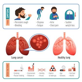 Infografica polmonare. cartone animato di vettore polmone infografica