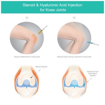 Iniezione di acido ialuronico e steroide per le articolazioni del ginocchio.