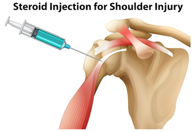 Iniezione di steroidi per lesioni alla spalla
